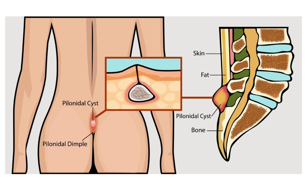 pilonidal cyst - north shore center for plastic surgery, Skeleton