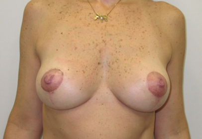 breast-lift-2
