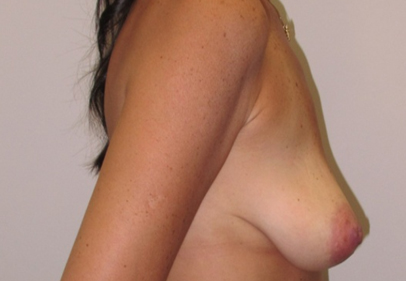 breast-lift-3