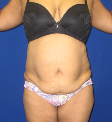 Breast Implants Long Island Cost
